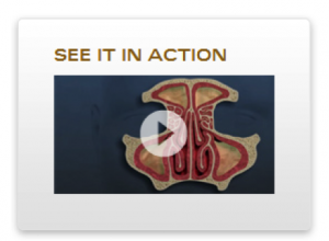 propel-sinus-stent-video