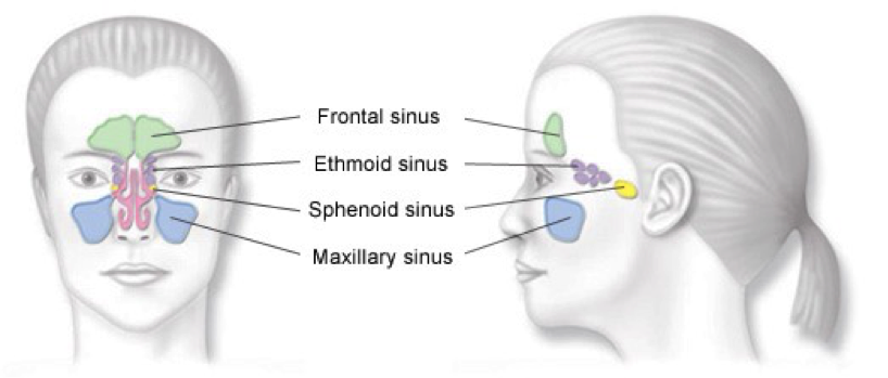 sinusitis1